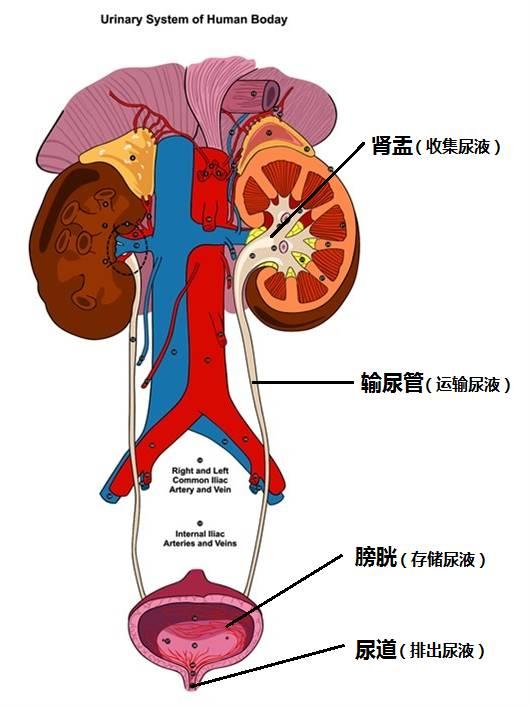 腎炎 腎盂 結石 性